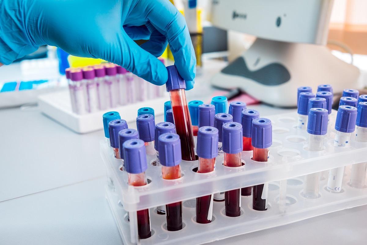 Test sanguin en remplacement de la biopsie mammaire