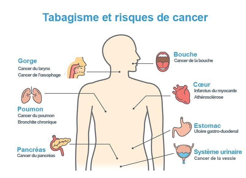 tabac & risques de cancer